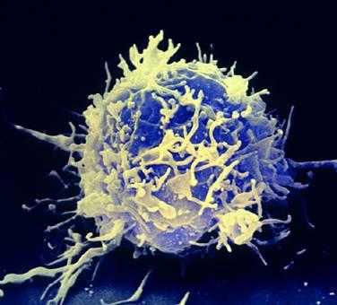 linfocitaT-microscscansione.jpg